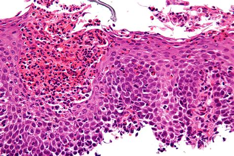 icd 10 food impaction esophagus eosinophilic esophagitis wikipedia