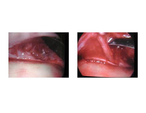 explore plastic surgery dr barry eppley arm lift technical strategies archives page 3 of 8