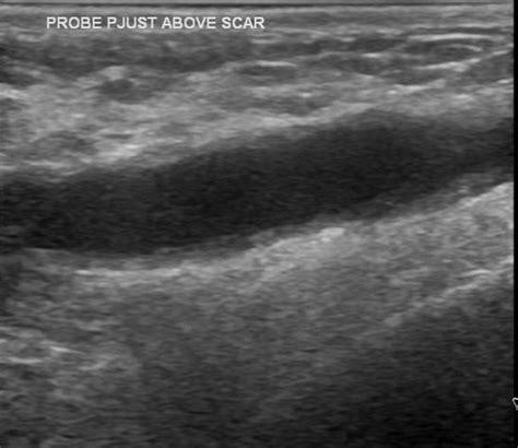 post mastectomy seroma image radiopaedia org