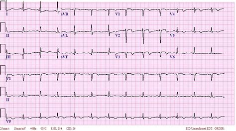 On t on ecg this would be an example of late r wave progression