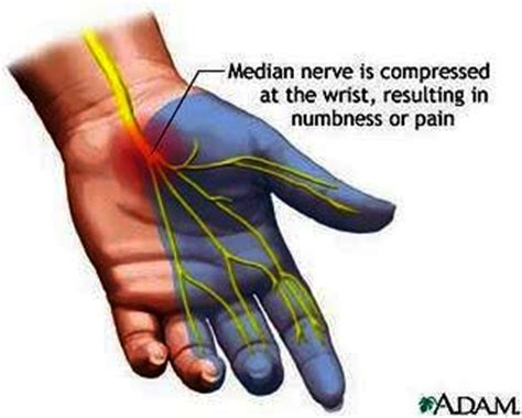 pain in right side of wrist answers on healthtap