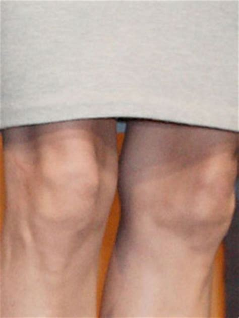 Whose Knobbly Knees Are These Celebsnow