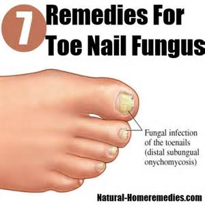toenail fungus home treatment top 7 home remedies for toe nail fungus how to cure toe