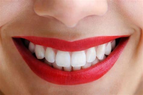 imagenes de sonrisas blancas 191 qu 233 hay detr 225 s de una bonita sonrisa br 229 nemark lleida