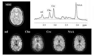 n acetylaspartate creatine how to take creatine alpf research