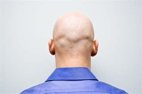male pattern baldness test baldness cure this simple test can tell you whether or