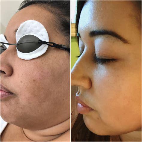 celebrity skin rejuvenation laser carbon facial nyc bye bye ink laser technology