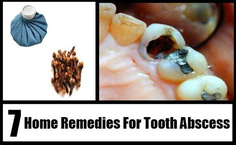 Abscessed Tooth Home Remedy by 7 Home Remedies For Tooth Abscess Treatments
