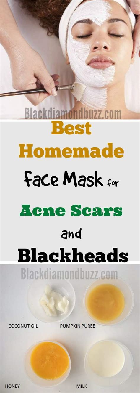 best diy mask for blackheads diy mask for blackheads and pimples diy do it your