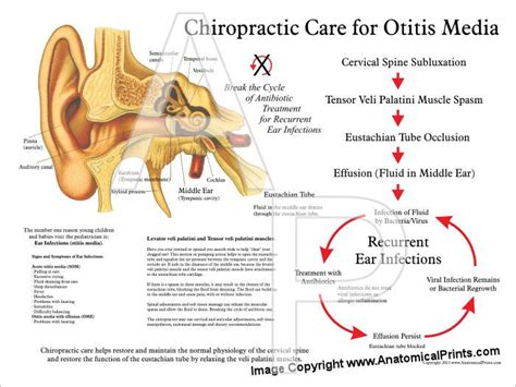 17 Best Images About Chiropractic On Pinterest Otitis | 1000 images about kids hearing ears on pinterest middle