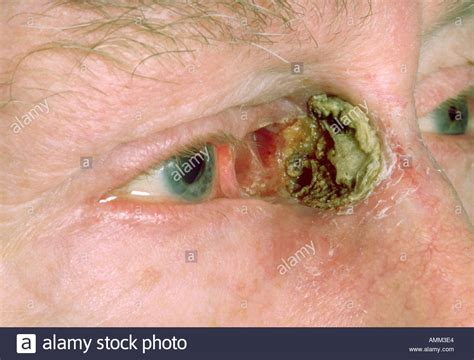 in bcc basal cell carcinoma www pixshark images galleries