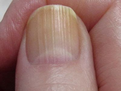 Nail Problems by Which Nail Problems Indicate Health Issues