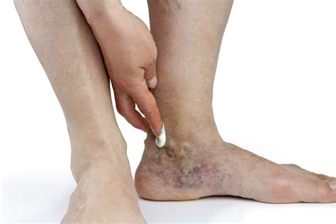 In Vein what you need to about sclerotherapy