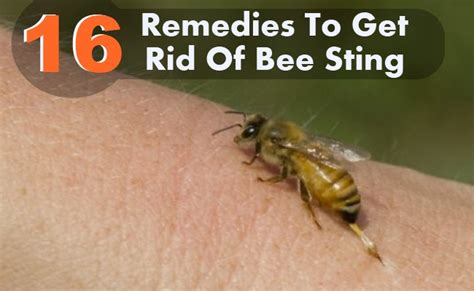 16 home remedies to get rid of bee sting diy health remedy