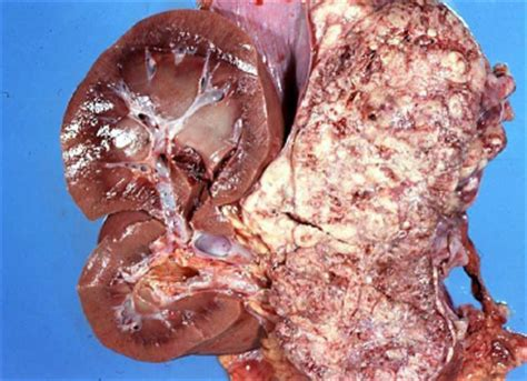 pheochromocytoma in dogs endocrine ns eye ear at ross school of veterinary medicine