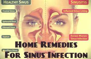 home remedies for a sinus infection 18 effective home remedies for sinus infection my health