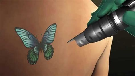 tattoo removal saskatoon 100 dalhousie phd student developing regret