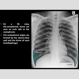 Pleural Effusion Vs Pneumothorax | 638 x 479 jpeg 67kB