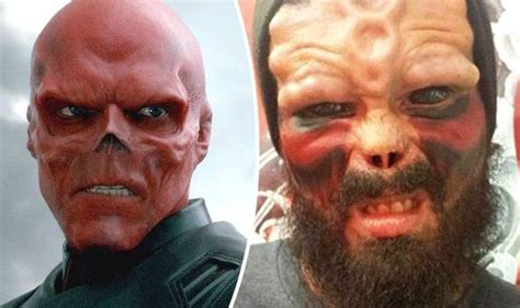man has nose removed to look like marvel comic book