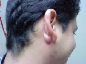 i a lump my ear on the side doctor