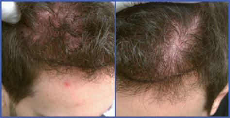creatine zoloft creatine hair loss grow back