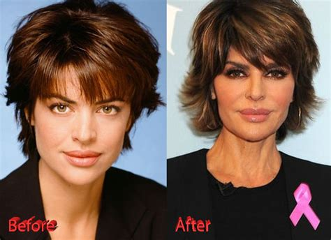 lisa rinna looks terrible rinna bad plastic surgery lisa rinna plastic surgery