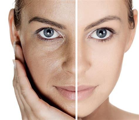 www cara remedios naturales para cerrar los poros abiertos