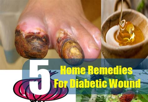 5 effective diabetic wound remedies home remedies for