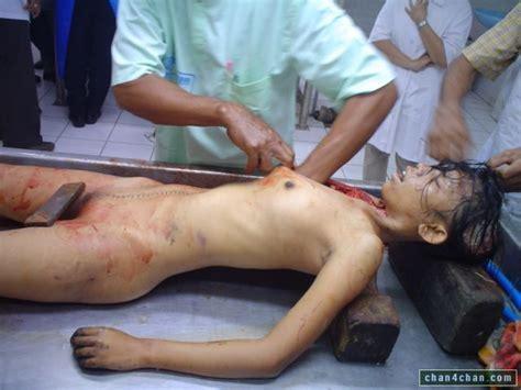 Nude Girls Morgue Dead Body Autopsy Gallery My
