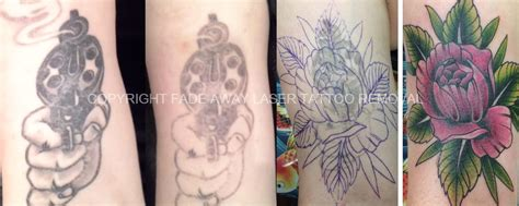 tattoo removal gun fade away laser tattoo removal the art of the coverup