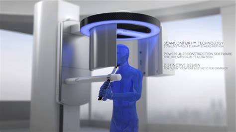 introducing  shape    age cbct scanner youtube