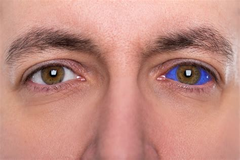 tattoo eye blind eye tattoos is it worth risking your vision focus clinic