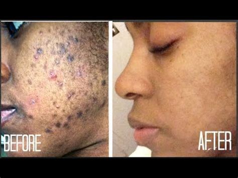 how to fade acne scars dark brown hairs 25 best ideas about black spots on skin on pinterest
