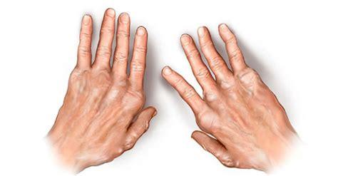 arthritis treatment the best rheumatoid arthritis treatment options