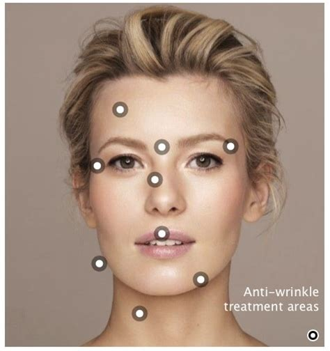 7 Wrinkle Areas And How To Treat Them by Cityskin Melbourne Anti Wrinkle Dermal Filler