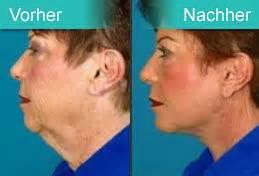 kinn absaugen vorher nachher facelift plastische chirurgie prag 7