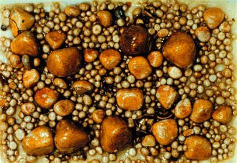 calcoli alla cistifellea alimentazione la calcolosi della colecisti e la colecistectomia