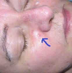 Blind Spot Under Skin Early Skin Cancer Pictures And Information