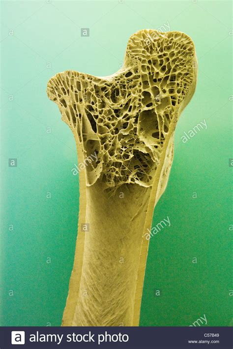 cross section of human bone showing trabecula bone