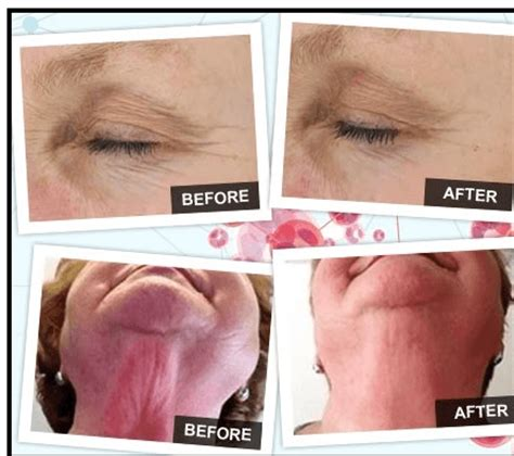 Review Bibit Collagen Daily time to look younger and feel younger with neocell