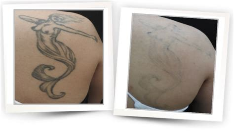 tattoo removal cream in malaysia alma lasers sinon q switched ruby laser