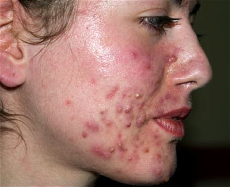 spot causes nhs direct wales encyclopaedia acne