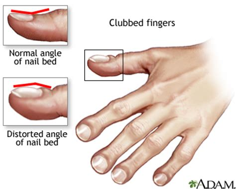 nail bed definition clubbing of the fingers or toes