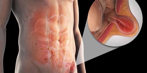 ernia inguinale alimentazione ernia inguinale sintomi cause cure e recidivit 224