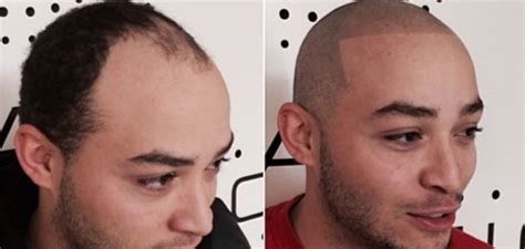 tattoo hairline hair and scalp pigmentation before and after pictures and