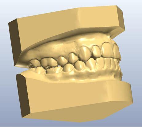 digital models northstar orthodontic laboratory digital services