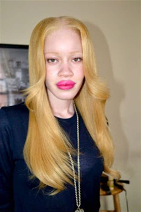 Diandra Top 2 diandra forrest top model afro am 233 ricaine albinos l