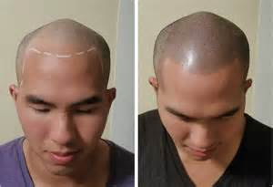 pics of scalp micropigmentation on with hair hair tattoo the new toupee micropigmentation stylist