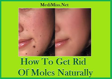 How To Get Rid Of Moles In My Backyard rid of bed bugs naturally house fly products in india how to get rid of moles naturally