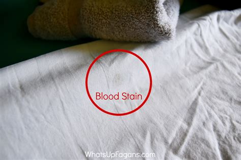 how to remove dried blood stains from upholstery removing dried blood from carpet meze blog